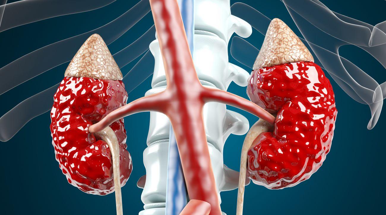摄图网_401907184_肾病肾衰竭3D场景(企业商用)
